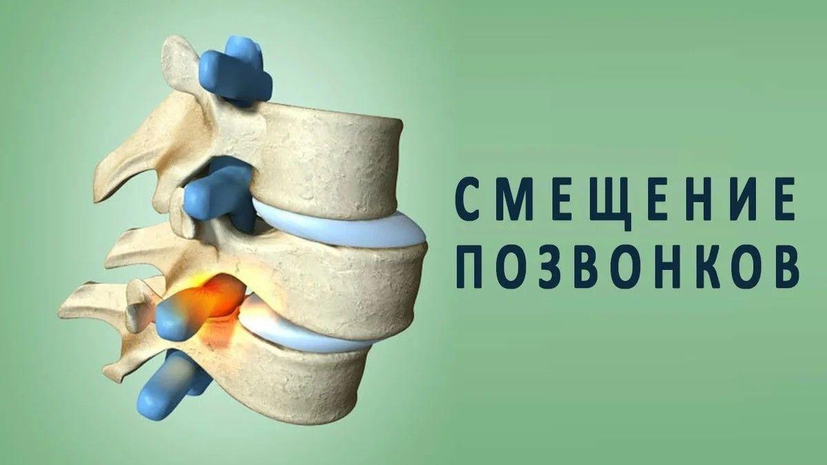 Лечение листеза позвонка в Москве